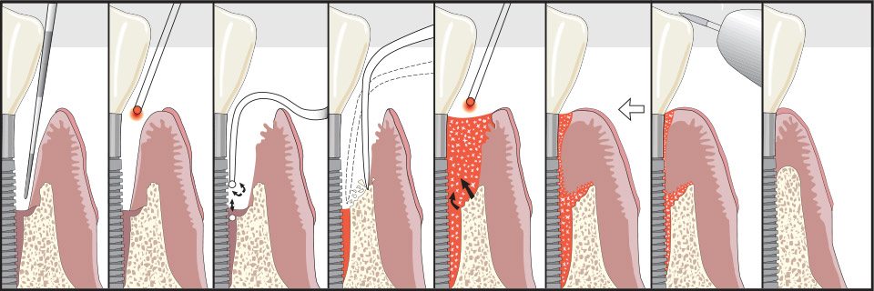 save dental implants gilbert az