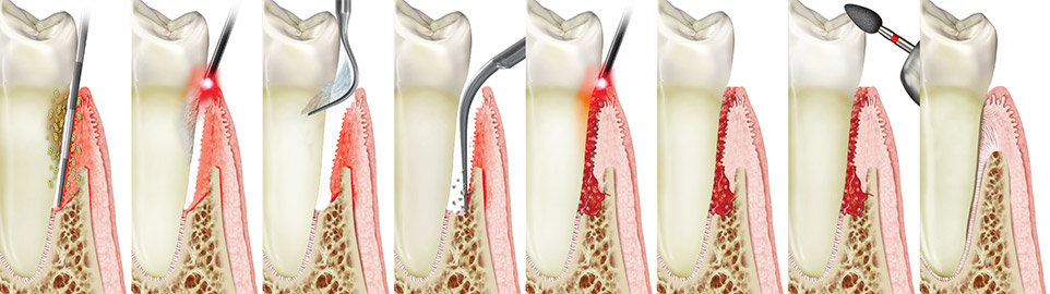 step by step view of how lanap heals advanced gum diseaes