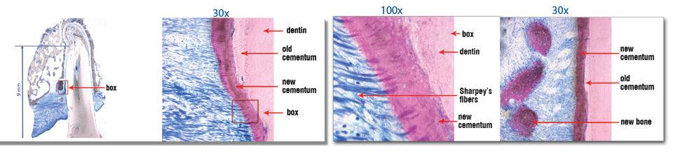 LANAP Can Fix Loose Teeth and Reverse Bone Loss