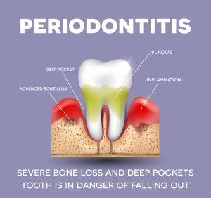 stop bone loss in teeth